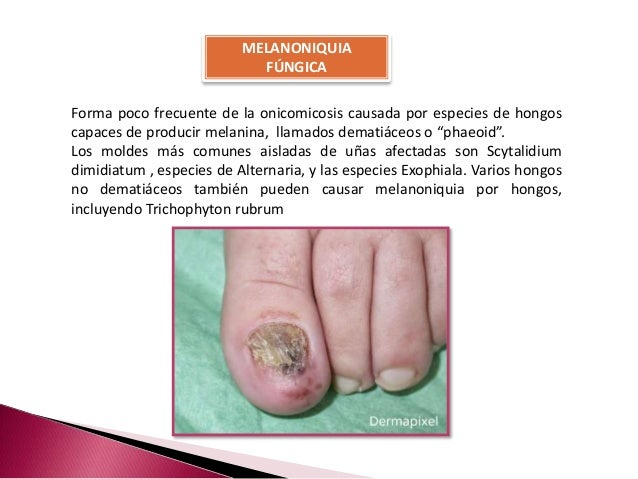 onychomycosis essay Although not life-threatening, onychomycosis (a fungal infection of the nail, usually caused by a dermatophyte) constitutes an important public health problem because.