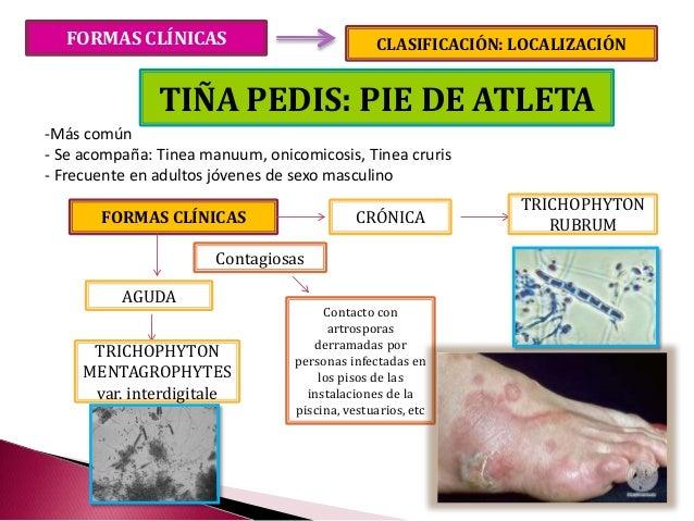 Onicomicoza dermatofitica