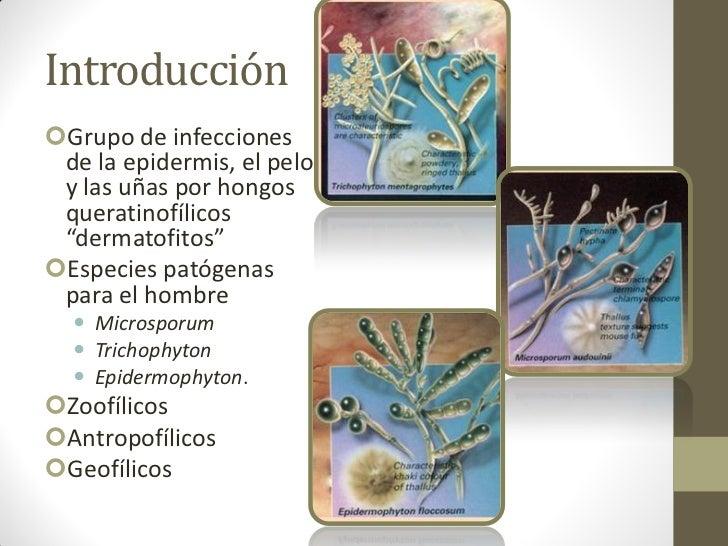 """IntroducciónGrupo de infecciones de la epidermis, el pelo y las uñas por hongos queratinofílicos """"dermatofitos""""Especies ..."""