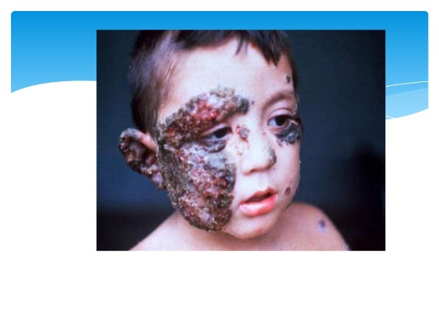 Dermatologia Piodermitis