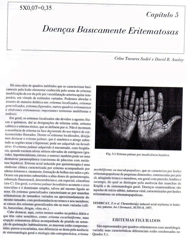 Dermatologia   doenças basicamente eritematosas
