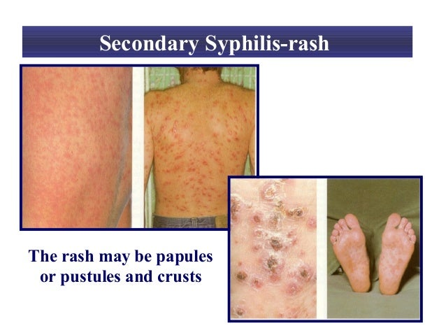 梅毒の第2期の症状に関する写真_梅毒性丘疹