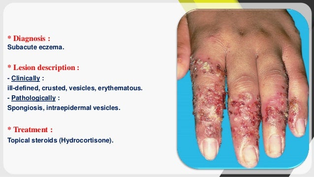 Dermatology (diagnosis of dermatological lesions)
