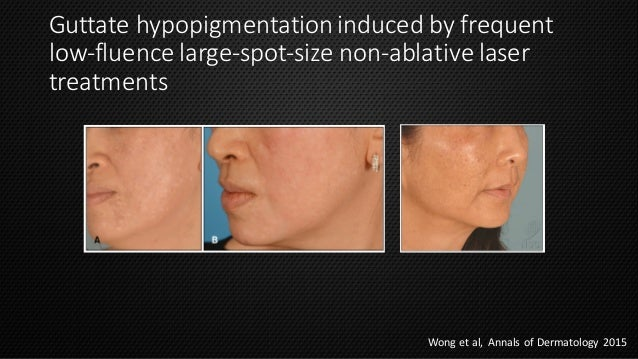 Laser In Asian Skin