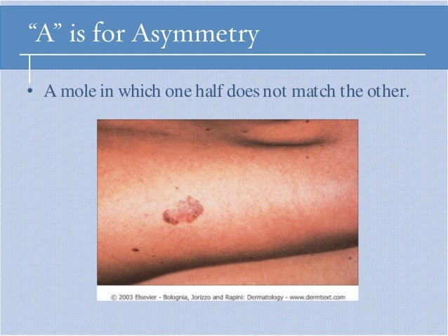 melanoma: signs & symptoms, Human Body