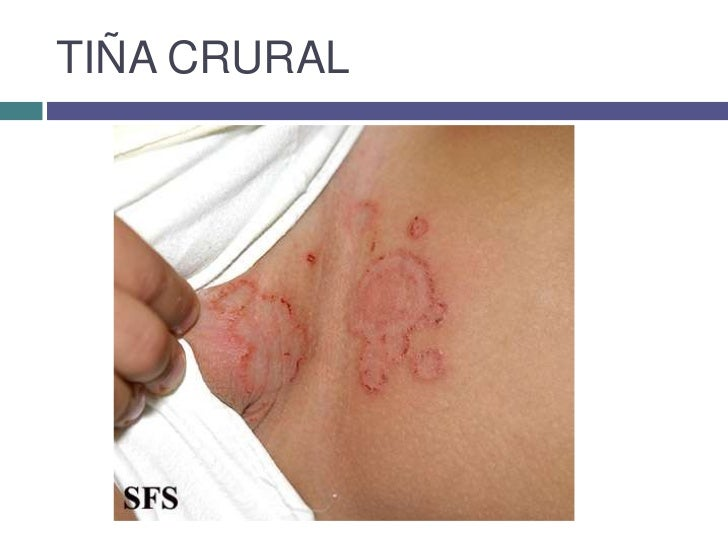 La psoriasis la forma de la piel con la hemorragia