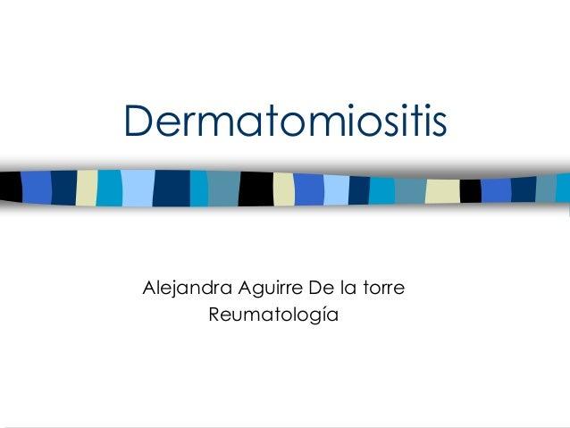 Dermatomiositis Alejandra Aguirre De la torre Reumatología