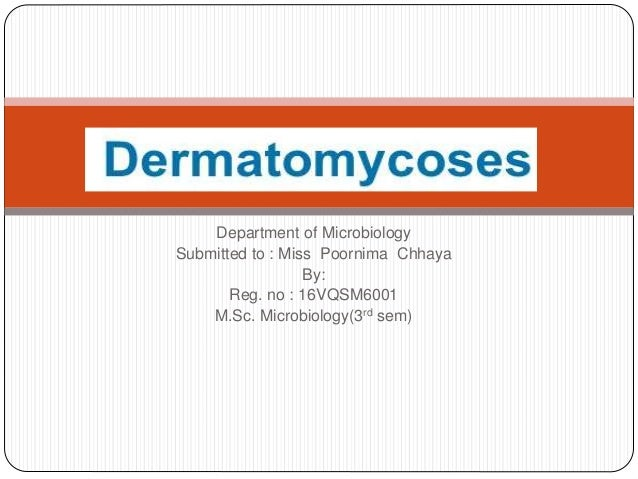 Department of Microbiology Submitted to : Miss Poornima Chhaya By: Reg. no : 16VQSM6001 M.Sc. Microbiology(3rd sem)