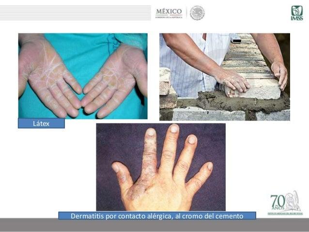 DERMATOSIS PROFESIONALES PDF