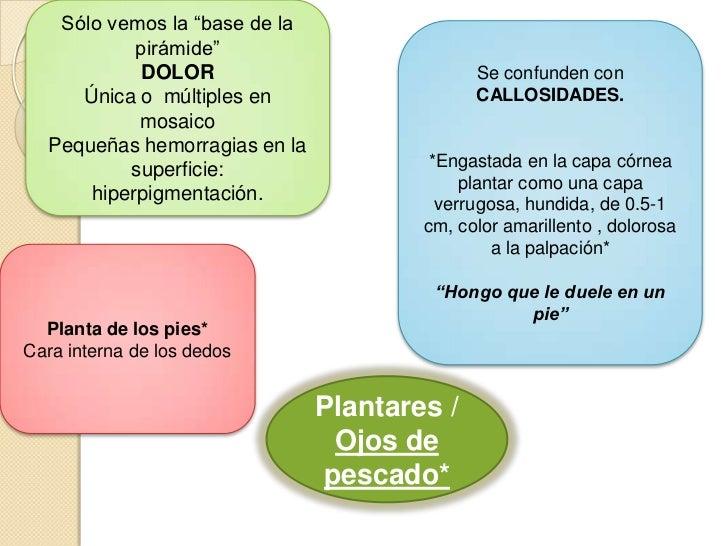 Excelente Verruga Uña Molde - Ideas de Pintar de Uñas - ayagenesis.info
