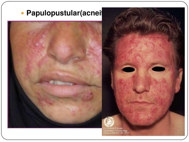 El masaje en la cara a la piel problemática