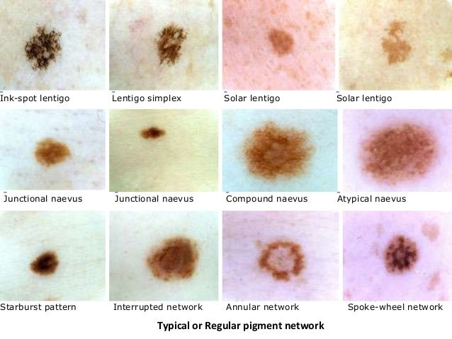 Melanoma | Pictures of abnormal moles | Cancer Research UK