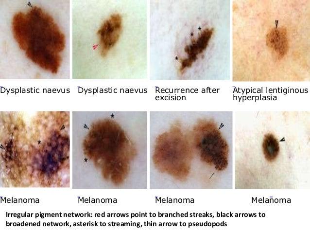 Dermoscopy pigment vs vascular