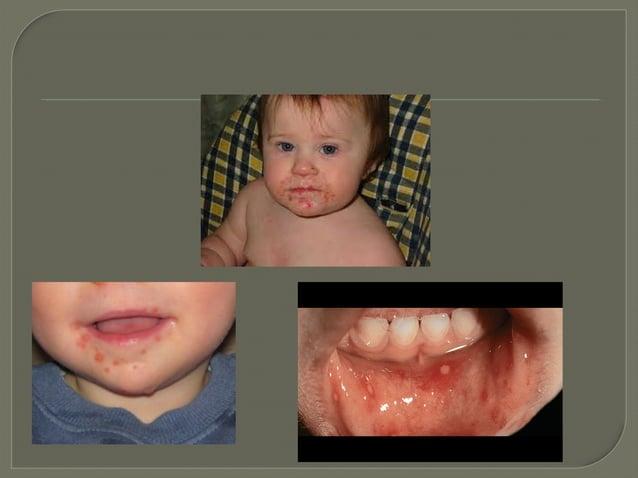 Paediatric Rashes