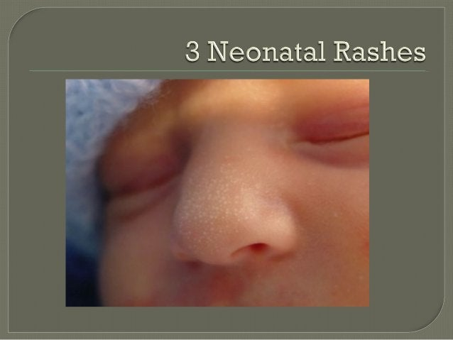      8yo, fever, headache then rash Explosion of crops of lesions, first face/scalp, then trunk and limbs over 1 day Sp...