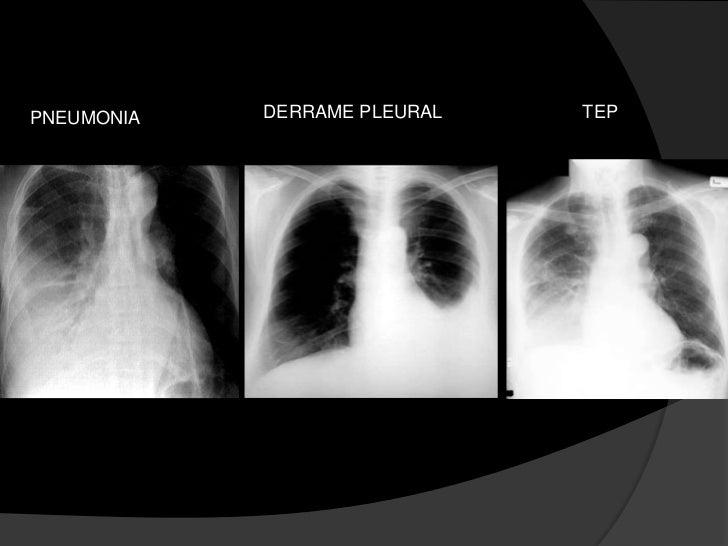 Avaliação Inicial<br />Turgência jugular, ritmo em galope (B3) ou edema periférico sugerem insuficiência cardíaca congesti...
