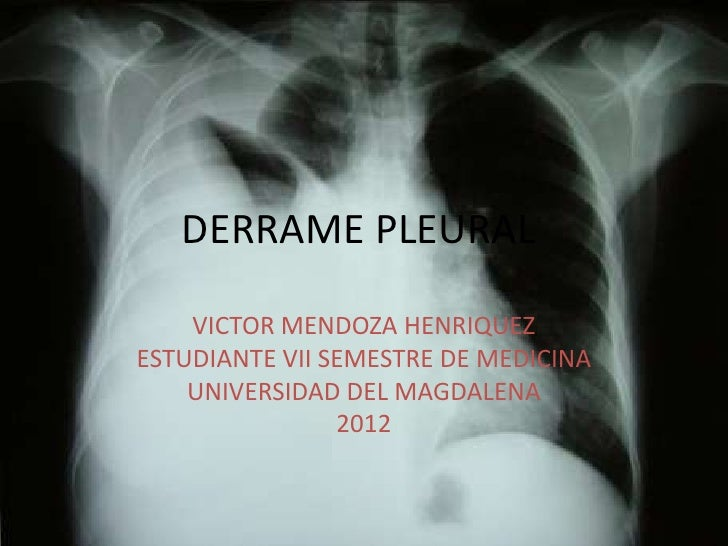 DERRAME PLEURAL    VICTOR MENDOZA HENRIQUEZESTUDIANTE VII SEMESTRE DE MEDICINA    UNIVERSIDAD DEL MAGDALENA               ...
