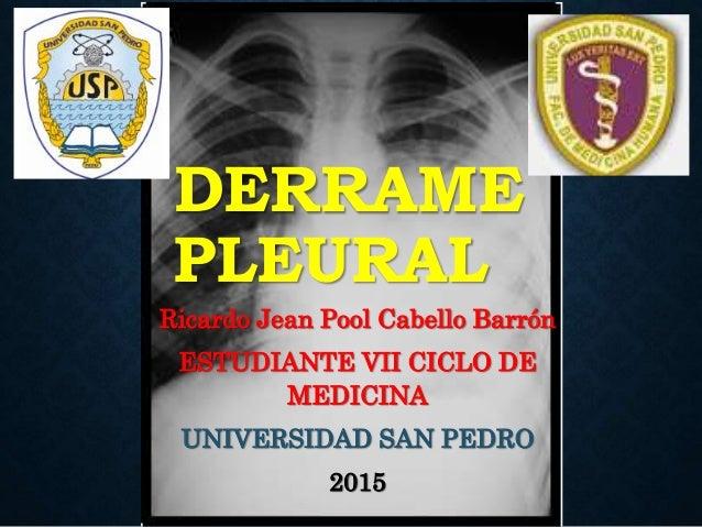 DERRAME PLEURAL Ricardo Jean Pool Cabello Barrón ESTUDIANTE VII CICLO DE MEDICINA UNIVERSIDAD SAN PEDRO 2015