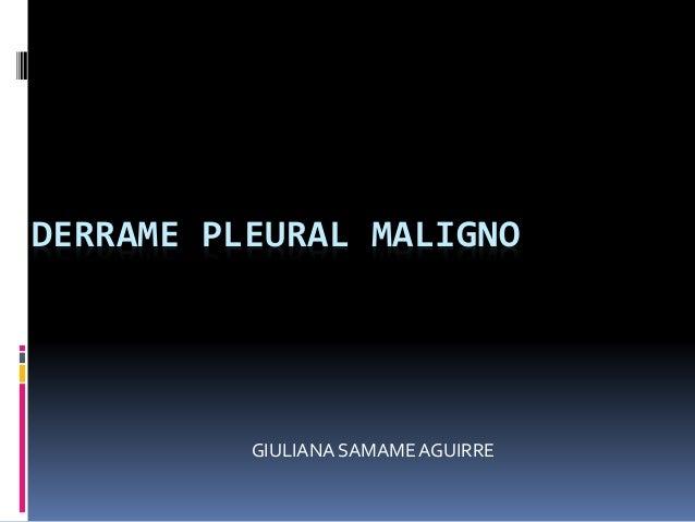 DERRAME PLEURAL MALIGNO GIULIANA SAMAMEAGUIRRE