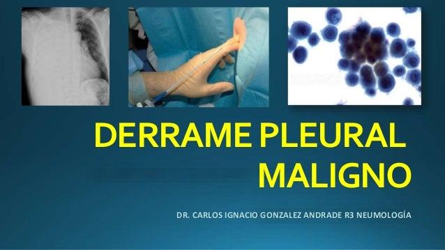 DERRAMEPLEURAL MALIGNO DR. CARLOS IGNACIO GONZALEZ ANDRADE R3 NEUMOLOGÍA