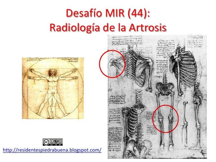 Desafío MIR (44):                   Radiología de la Artrosishttp://residentespiedrabuena.blogspot.com/