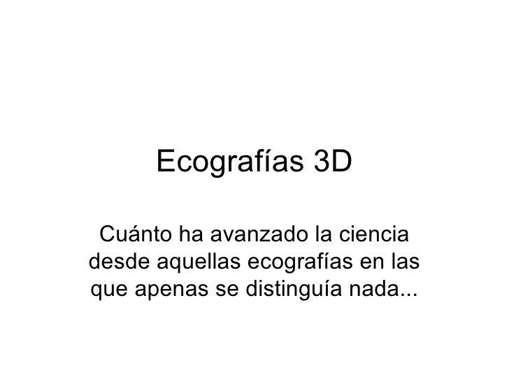 Ecografías 3D Cuánto ha avanzado la ciencia desde aquellas ecografías en las que apenas se distinguía nada...
