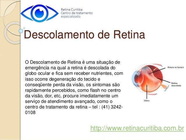 O Descolamento de Retina é uma situação de emergência na qual a retina é descolada do globo ocular e fica sem receber nutr...