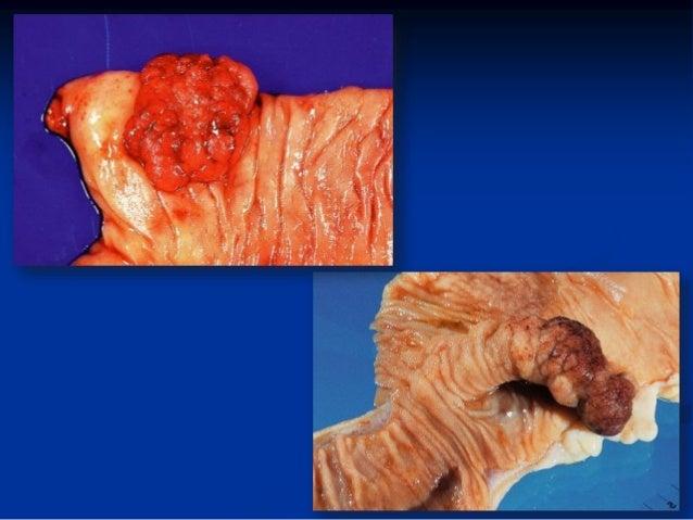 Descripcion macroscopica de lesiones (necropsia) vet
