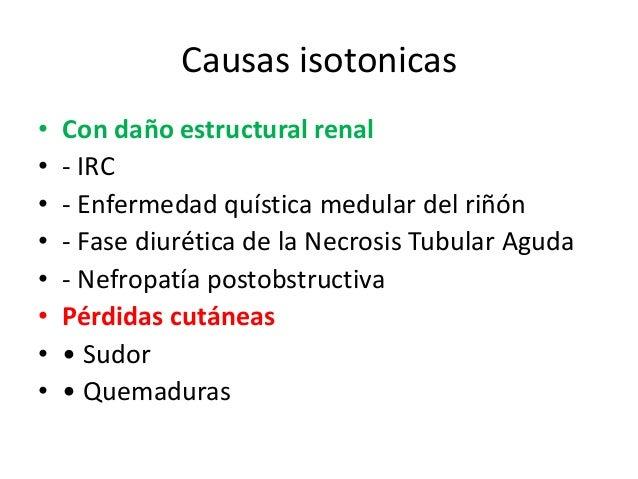 Causas isotonicas•   Con daño estructural renal•   - IRC•   - Enfermedad quística medular del riñón•   - Fase diurética de...