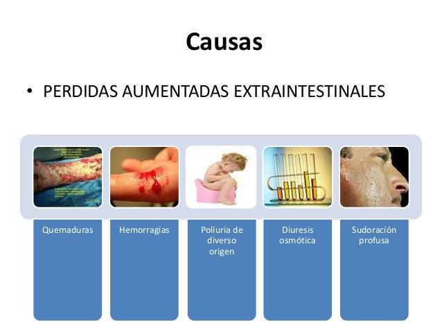 Causas• PERDIDAS AUMENTADAS EXTRAINTESTINALES Quemaduras   Hemorragias    Poliuria de   Diuresis   Sudoración             ...