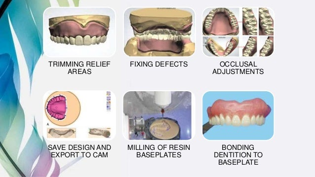 Design and fabrication of complete dentures using cad