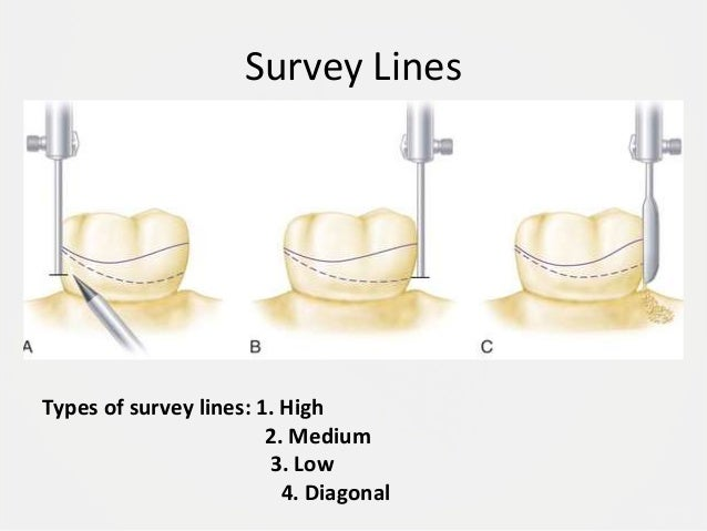 Designing A Removable Partial Denture Kennedy S Classification