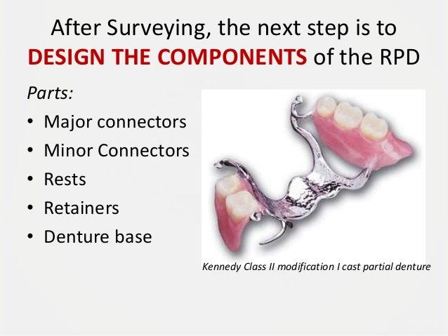 removable partial denture design - Mendicharlasmotivacionales