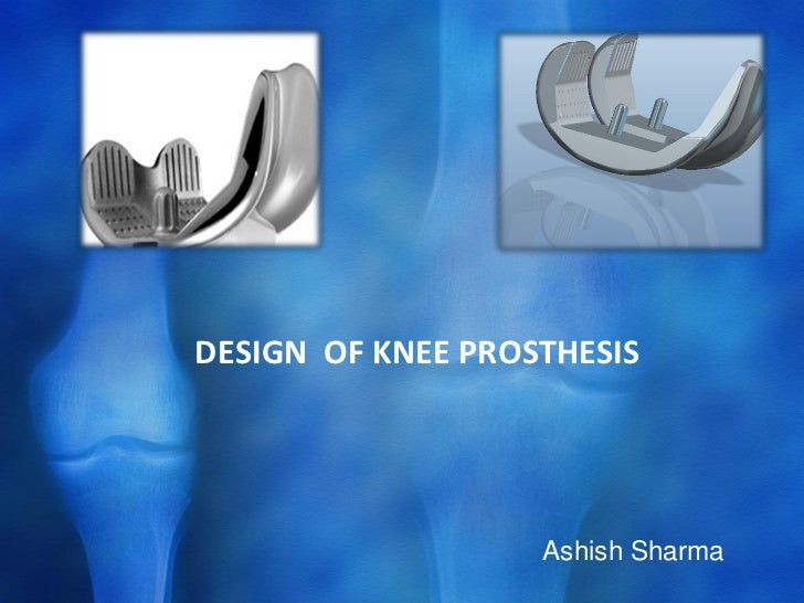 knee prothesis replacements Different types of knee replacement implants all knee replacements, partial or total types of knee replacement implants.
