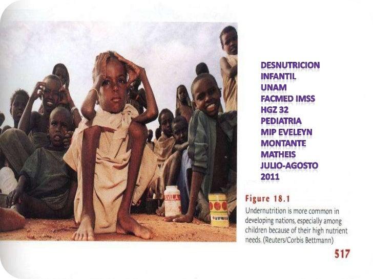 DESNUTRICION<br />INFantil<br />UNAM facmed IMSS HGZ 32 pediatria<br />MIP EVELEYN MONTANTE MATHEIS <br />JULIO-AGOSTO 201...