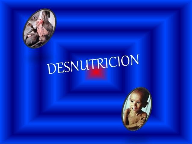 La desnutrición es un estado patológico provocado por la falta de ingesta o absorción de ALIMENTOS o por estados de exceso...