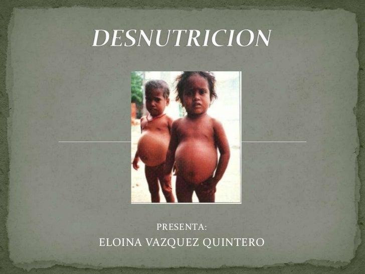 DESNUTRICION<br />PRESENTA:<br />ELOINA VAZQUEZ QUINTERO<br />