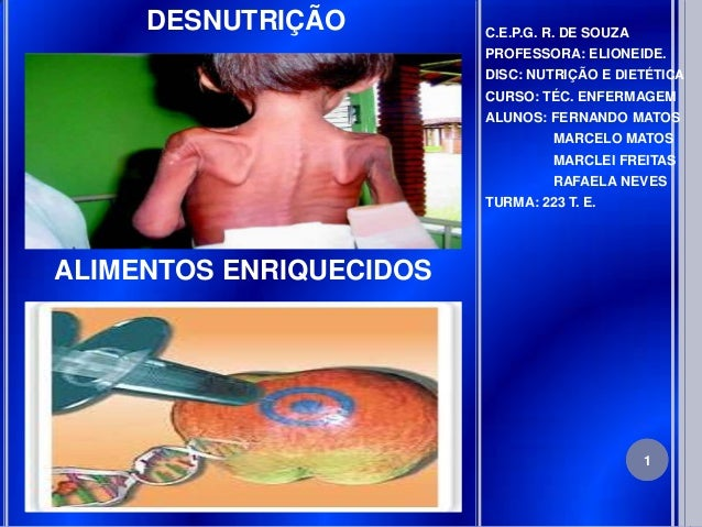 DESNUTRIÇÃO         C.E.P.G. R. DE SOUZA                         PROFESSORA: ELIONEIDE.                         DISC: NUTR...