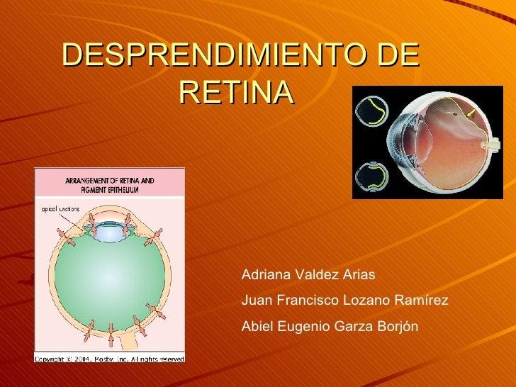 DESPRENDIMIENTO DE RETINA  Adriana Valdez Arias  Juan Francisco Lozano Ramírez Abiel Eugenio Garza Borjón