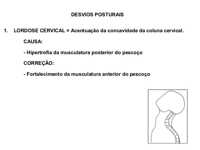 DESVIOS POSTURAIS1.   LORDOSE CERVICAL = Acentuação da concavidade da coluna cervical.        CAUSA:        - Hipertrofia ...