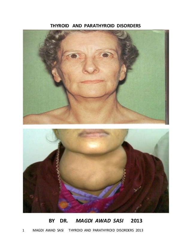 1 MAGDI AWAD SASI THYROID AND PARATHYROID DISORDERS 2013THYROID AND PARATHYROID DISORDERSBY DR. MAGDI AWAD SASI 2013