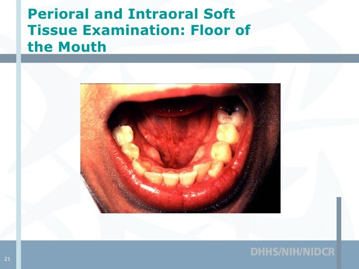 Healthy Floor Of Mouth Pictures Thefloors Co