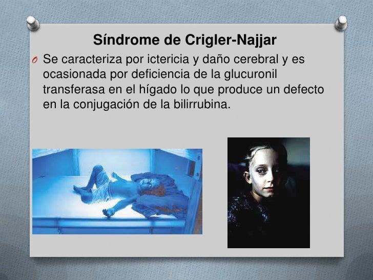 Síndrome de Crigler-Najjar<br />Se caracteriza por ictericia y daño cerebral y es ocasionada por deficiencia de la glucuro...