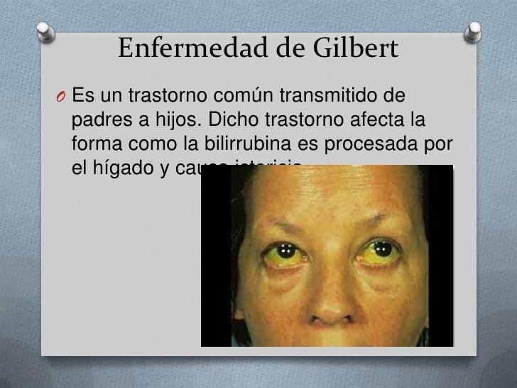 Enfermedad de Gilbert<br />Es un trastorno común transmitido de padres a hijos. Dicho trastorno afecta la forma como la bi...