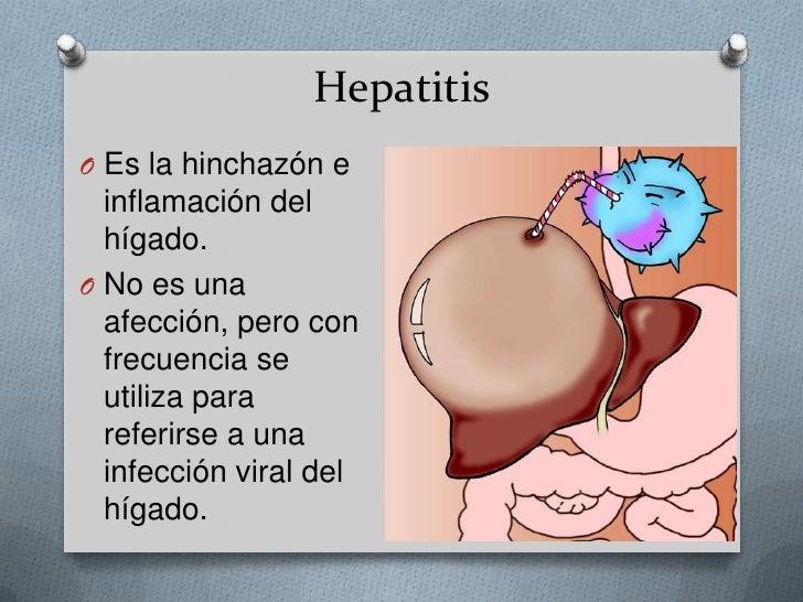 Hepatitis <br />Es la hinchazón e inflamación del hígado. <br />No es una afección, pero con frecuencia se utiliza para re...