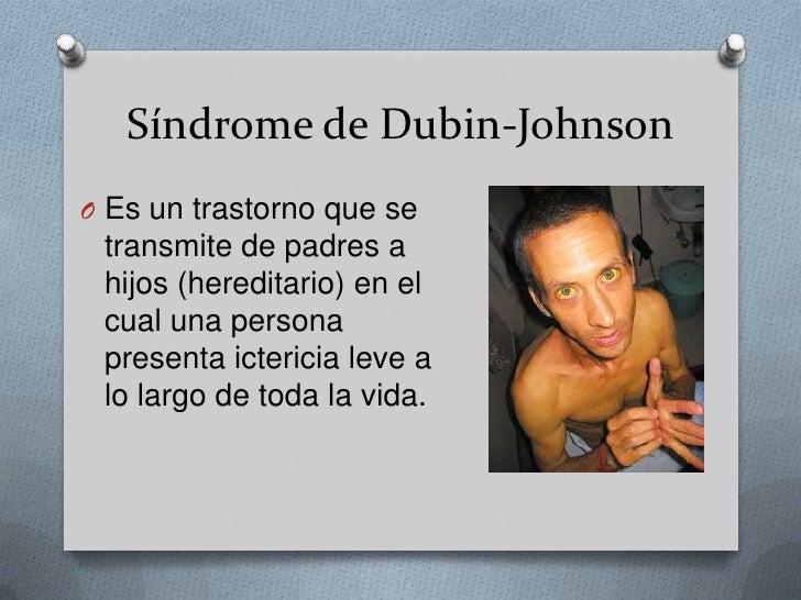 Síndrome de Dubin-Johnson<br />Es un trastorno que se transmite de padres a hijos (hereditario) en el cual una persona pre...