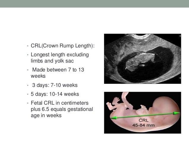 Third trimester ultrasound dating chart 5