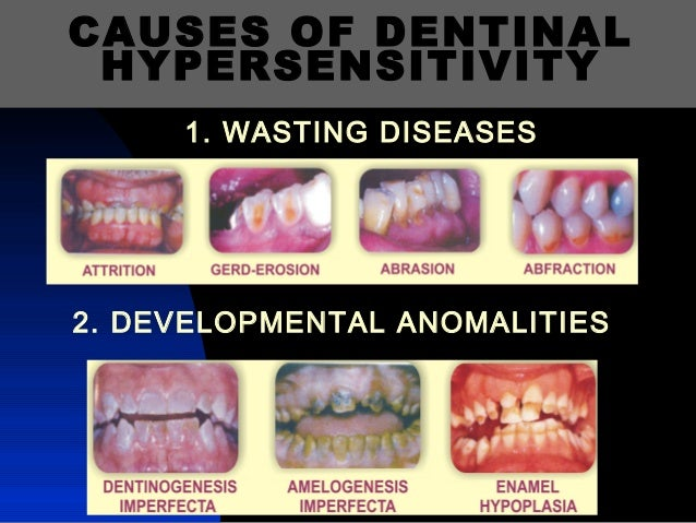 Remedy to Dentinal hypersensitivity /certified fixed orthodontic cour…