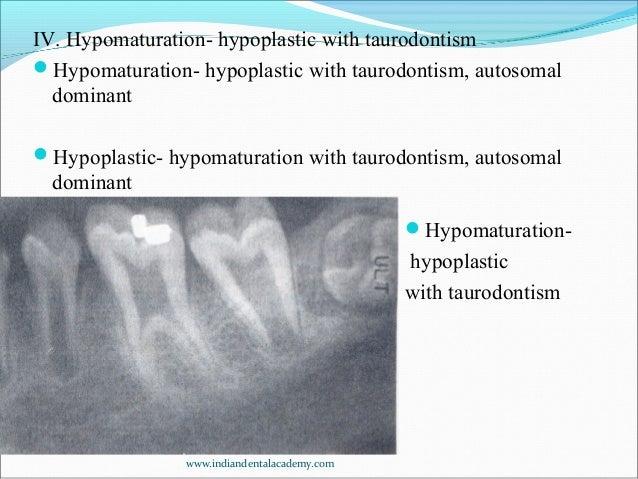 developmental disturbances in structure of teeth