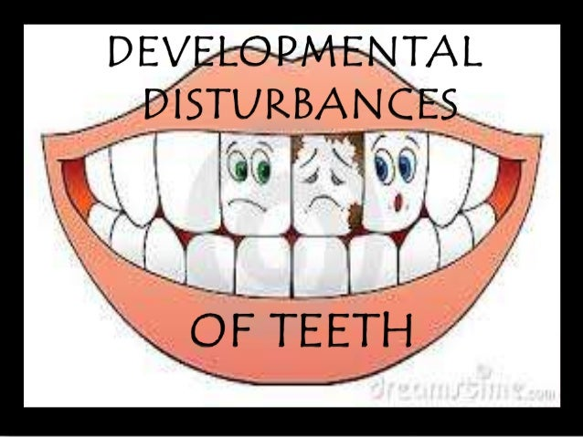Developmental disturbances means an  abnormality where the pathology starts  in the embryonic stage of human life ,  befor...